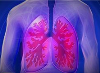 Illustration of person's lungs with COPD